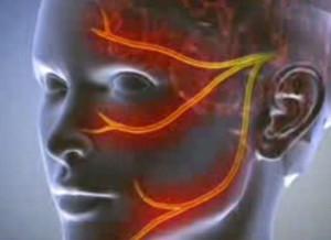 erekció során fáj kinyitni a fejét)