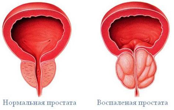 hiányos erekciós prosztatagyulladás)
