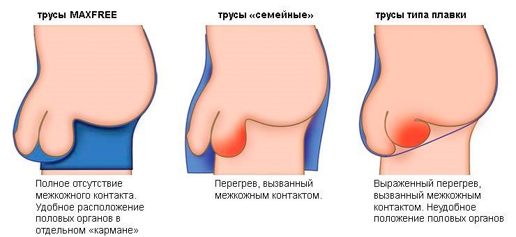 miért büdös lehet a pénisz)
