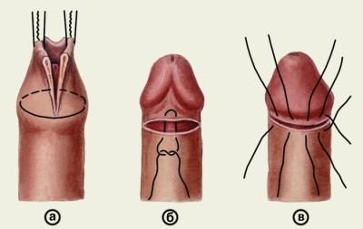erekció során a pénisz feje pirosra vált