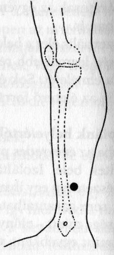 erekciós akupunktúrás pontok)