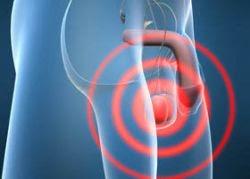 erekció hagyományos orvoslás