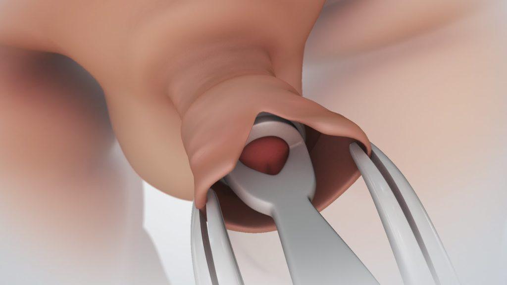 ha a pénisz közösülés előtt leesik