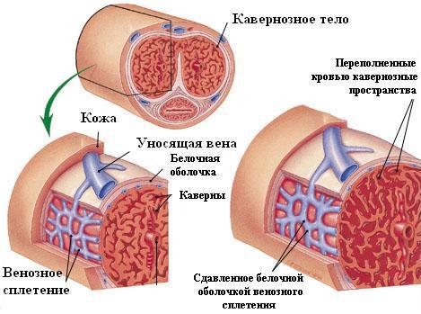 romlott erekciós okok)