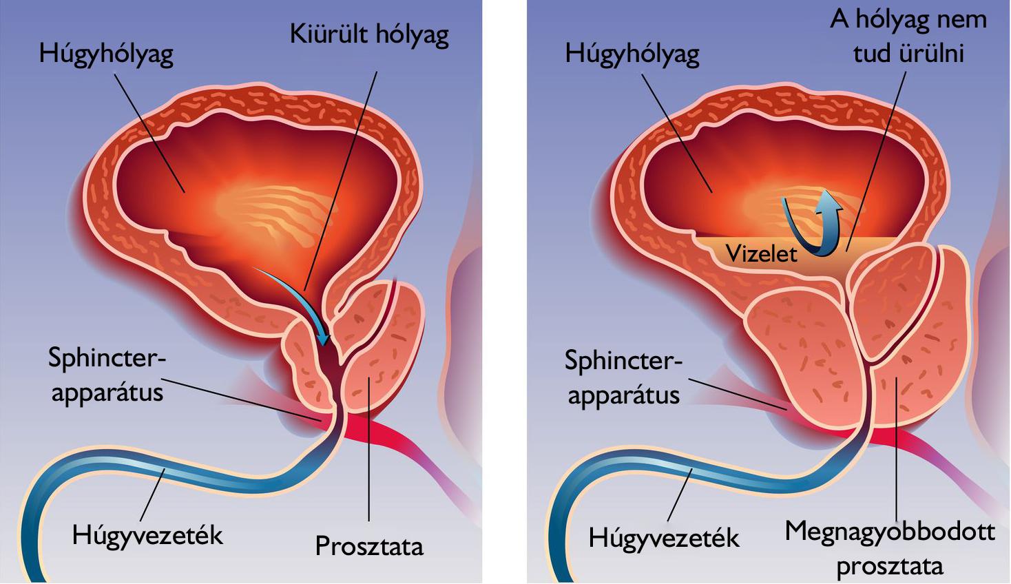 erekció a katéterezés során