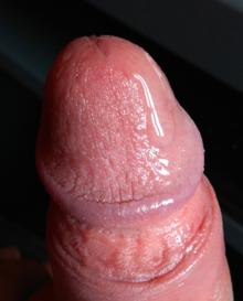 ejakuláló pénisz)