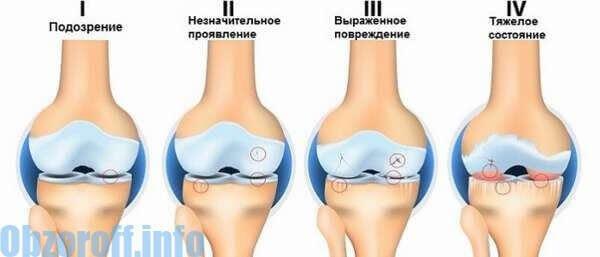 a részleges erekció jelei)