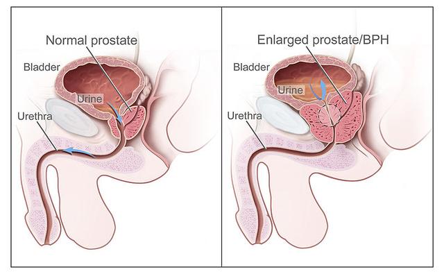 nincs erekció a pangásos prosztatagyulladásból
