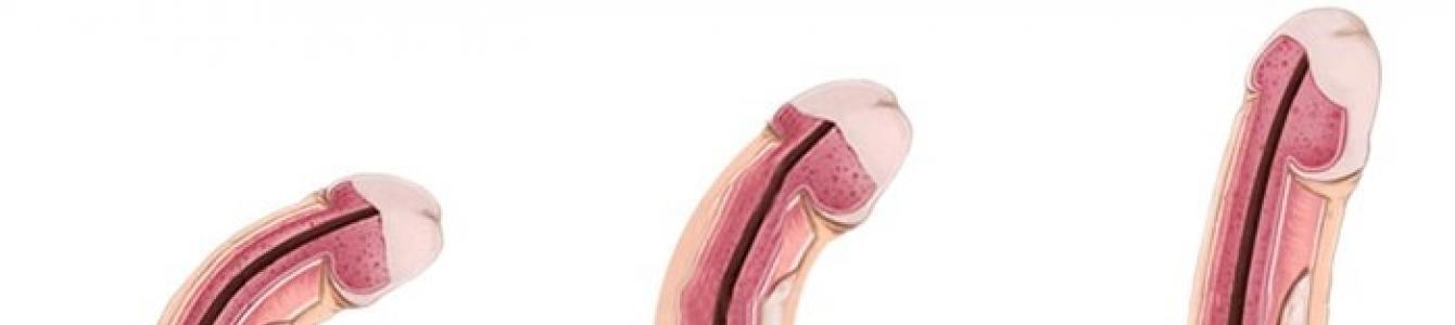 milyen péniszméretet részesítenek előnyben a lányok prosztata adenoma erekció éjszakai