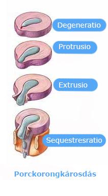 gerincsérv-erekció)