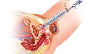 prosztata adenoma erekció éjszakai