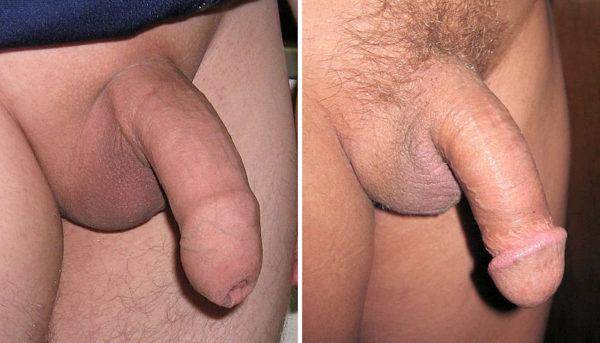 megbeszélések a péniszről)