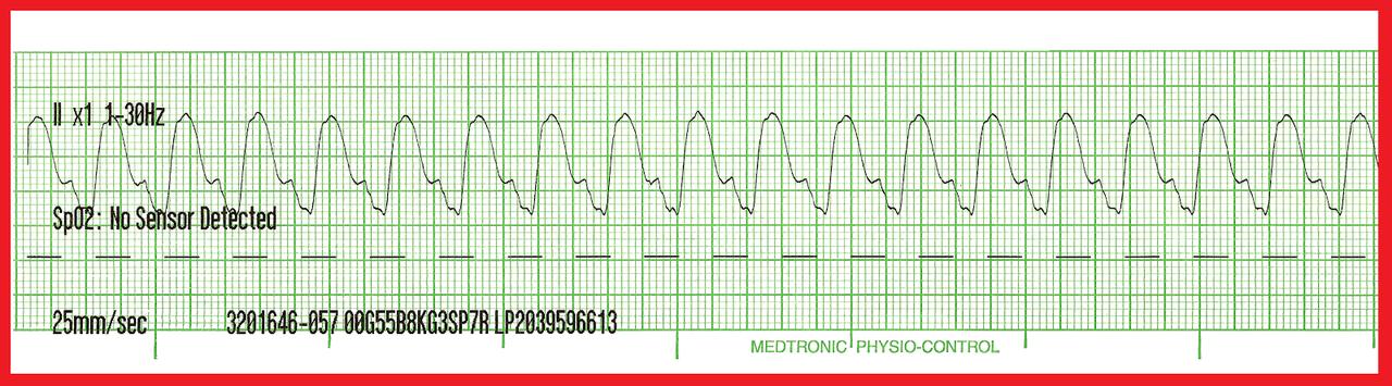 tachycardia és merevedés