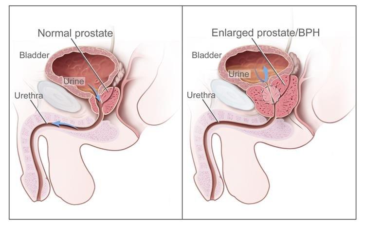 Melyek a leggyakoribb szövődmények prosztataműtét után?
