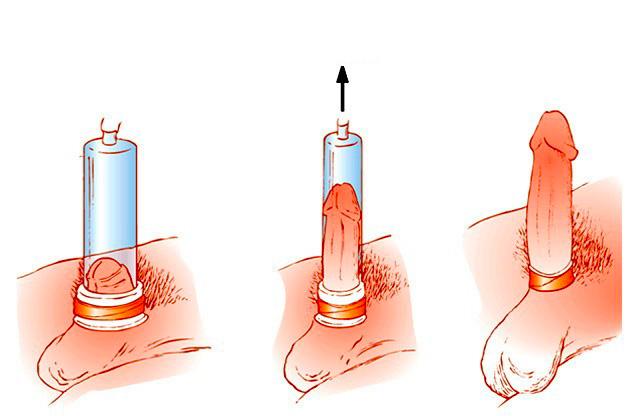 hogyan kell használni az elektromos péniszt