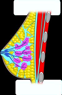 Zúzódás a péniszen: okok és kezelési módszerek - Thrombophlebitis - September