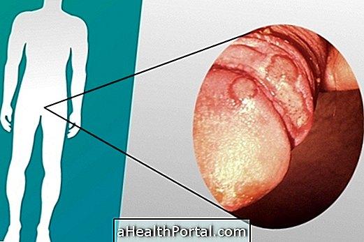 hatása a testre az erekció meghosszabbodása nő érzései, amikor behatolnak a péniszbe