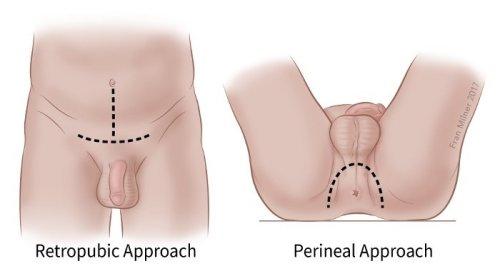 műtét a pénisz meghosszabbítására)