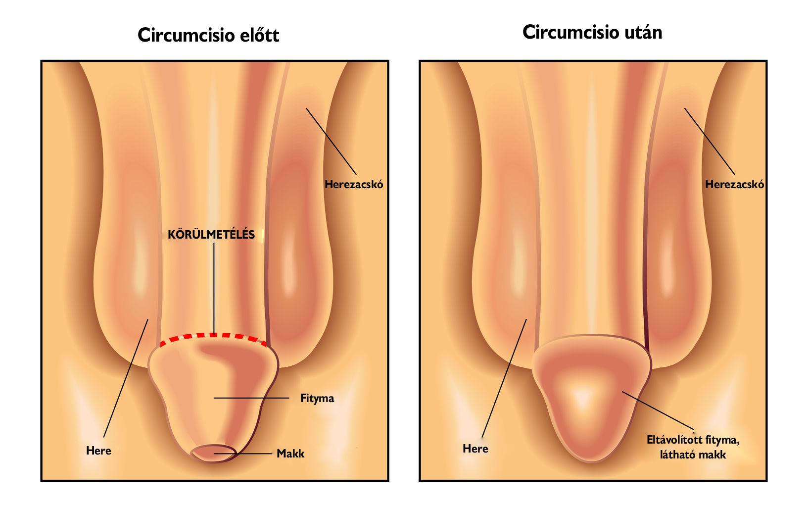 pénisz a műtét után