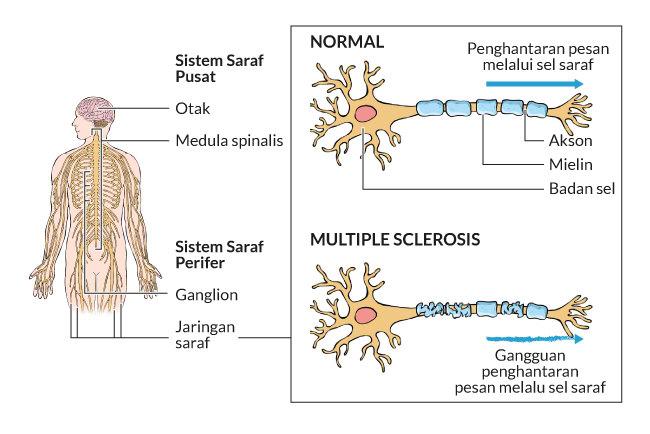 sclerosis multiplex nincs merevedés