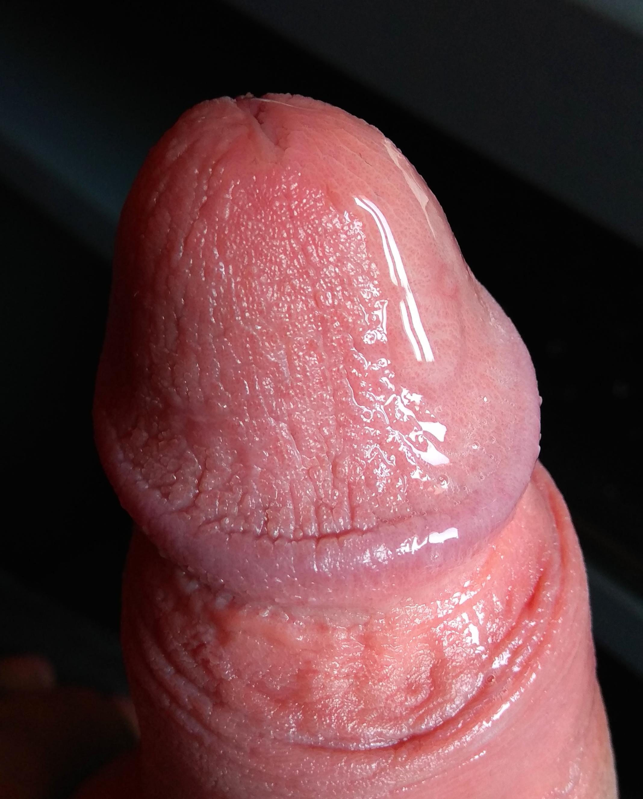 erekciója van maszturbáláskor