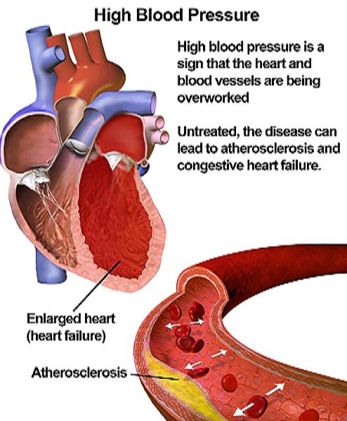 erekciós hipertónia
