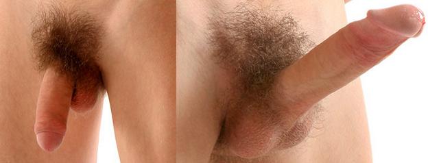 férfi nemi szerv az erekcióban