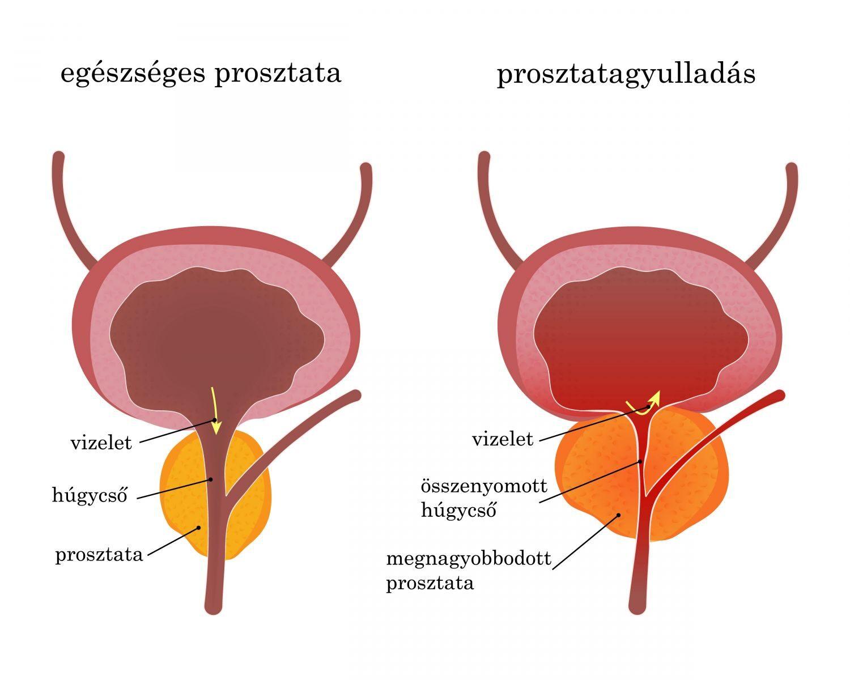 prosztatagyulladás és merevedési problémák